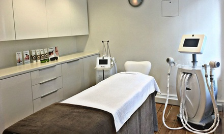 Cryogenic Lipolysis on Up to Three Areas at Carnaby Laser Clinic (Up to 81% Off)