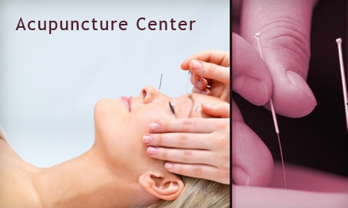 Acupuncture Center - Multiple Locations: $39 for a Traditional Chinese Acupuncture Treatment at Acupuncture Center ($120 Value)