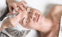 Up to Six Sessions of Microdermabrasion at Glamour IPL