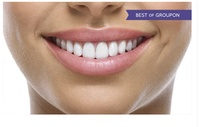 Kosmetisches Standard- oder Intensiv- Zahn-Bleaching, opt. mit Refresh bei Beauty Tech Wiesbaden (bis zu 71% sparen*)