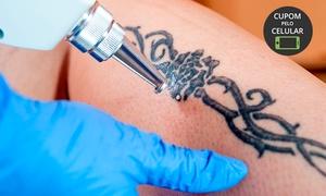Juliana Casagrande Estetica: 3, 6 ou 9 sessões de remoção de tatuagem a laser na Juliana Casagrande Estética – Portão