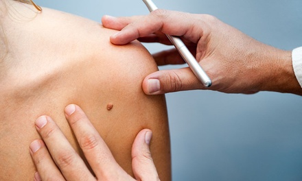 Wart, Skin Tag or Pigmentation Spot Removal for Up to Four Areas at The Skin Spa (Up to 54% Off)