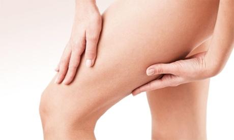 Cellulite-Behandlung mit Lymphdrainage und Unterdruck bei health friends Mainz