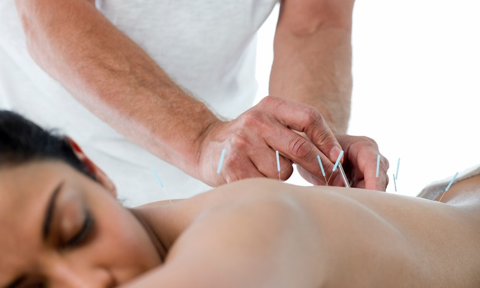 Up to Two Acupuncture and Two Cupping Sessions at Natures Way Chinese Herbal Medicine