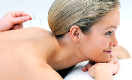Four, Two, or One Acupuncture Treatments with Consultation at Shoreline Community Acupuncture (Up to 79% Off)