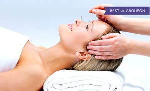 White Orchid Rejuvenation Center: Acupuncture or Cupping at White Orchid Rejuvenation Centre (Up to 71% Off). Six Options Available.