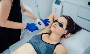 Isabel Medical Day Spa: Depilacja medycznym laserem diodowym: 3 zabiegi od 199,99 zł i więcej opcji w Isabel Medical Day Spa w Katowicach