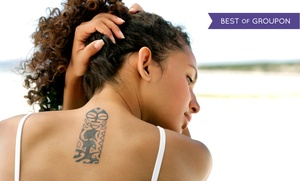 Serenity Rejuvenation Center: $249 for One Picosure Laser Tattoo-Removal Session at Serenity Rejuvenation Center ($488 Value)