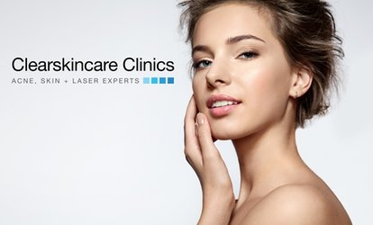 $59 Skin Express Microdermabrasion w/ LED Light Treatment, Double Cleanse + Active Serum Application (Up to $139 Value)