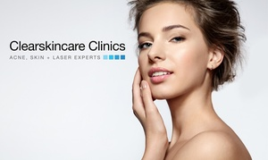Clearskincare Clinics: $79 for a Microdermabrasion & Light Therapy Package at Clearskincare Clinics, 43 Locations (Up to $214 Value)