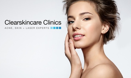 $59 Skin Express Microdermabrasion w/ LED Light Treatment, Double Cleanse + Active Serum Application Up to $139 Value