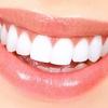 Blanqueamiento y limpieza bucal