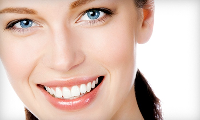 WhiteShade - Braemar Park - Bel Air Heights - Copeland Park: One or Two Power Teeth-Whitening Treatments at WhiteShade (Up to 75% Off)
