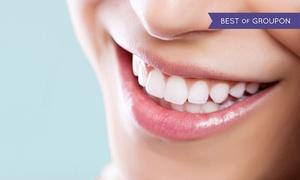 White & Beauty: Wybielanie zębów akceleratorem halogenowym z przeglądem od 199 zł w White&Beauty Gdańsk