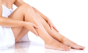 Embellir Wellness Clinic: Six Laser Hair-Removal Sessions for a Small Area from R399 for One at Embellir Wellness Clinic (Up to 80% Off)