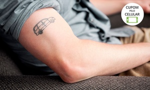 Fisioestetic - Unidade Wanel Ville: Fisio Estetic Wanel – Wanel Ville:1, 3, 6 ou 10 sessões de remoção a laser de tatuagem