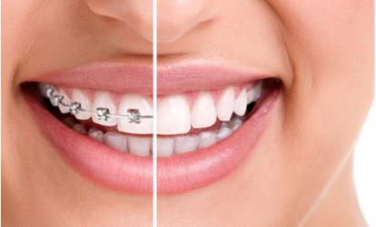 $29 for $2000 Off Braces or <strong>Invisalign</strong> Package at Tribeca Dental Studio ($2,350 Value)