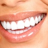 Up to 91% Off Teeth Whitening or Dental Exam