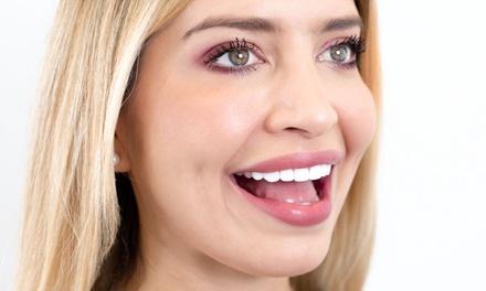 $4,799.20 for Resin Veneers One Arch Up to Ten Teeth at JativaMD ($9,999 Value)
