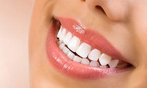 Revisión con diagnóstico, limpieza dental con ultrasonidos, pulido y fluorización por 12,90 € en Ayala