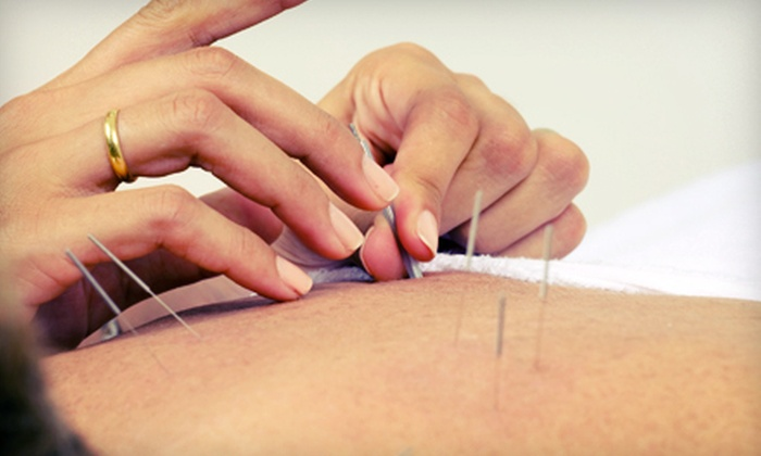 Michigan Acu Clinic - Ypsilanti: Acupuncture Treatments at Michigan Acu Clinic (Up to 71% Off). Three Options Available.