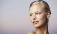 One or Three Sessions of Microdermabrasion at Verity