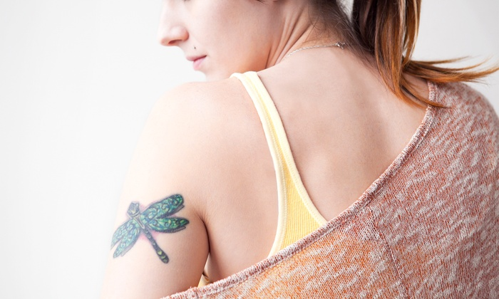 PacesLaserMD - Vinings: Laser Tattoo or Birthmark Removal for a 4-, 6-, or 8-Square-Inch Area at PacesLaserMD (Up to 70% Off)