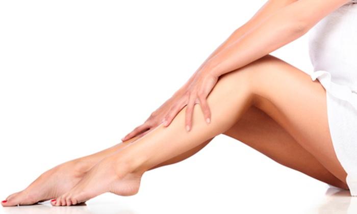 SkinStar Laser Med Spa - West Little Rock: Two or Four Spider-Vein Treatments at SkinStar Laser Med Spa (Up to 75% Off)