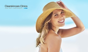 Clearskincare Clinics: $49 for a Skin Pigment + Refresh Treatment Package at Clearskincare Clinics, 41 Locations (up to $120 value)