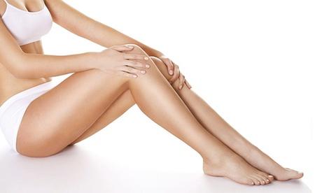 Eliminación de las varices de una o ambas piernas con etoxisclerol inyectado desde 69 € en Corporal Core Beauty