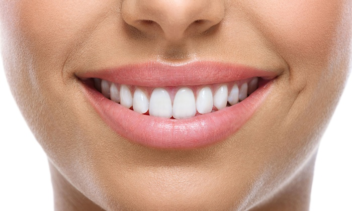 ZM Dental - Carrollwood Village: $999 for Consultation and Two Veneers at ZM Dental ($2,731 Value)