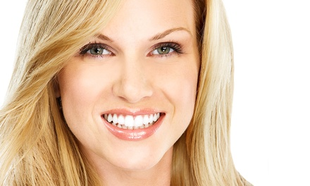 $83 for a Dental-Checkup Package with Whitening Kit or $100 Credit at Radiant Smiles Dental ($643 Value)