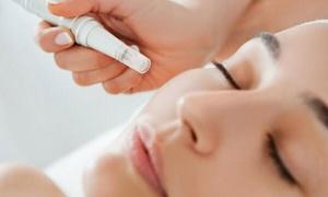 La Beauty Kosmetolog Joanna Siemianowska: Mikrodermabrazja lub peeling enzymatyczny od 39,99 zł w salonie La Beauty (do -60%)
