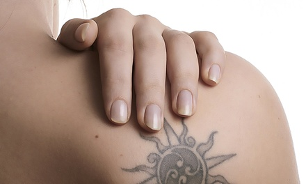 Two Tattoo Removal Sessions on a 3