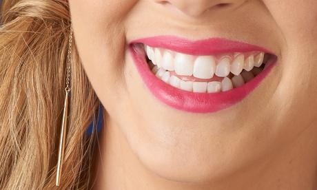 Limpieza bucal con revisión y opción a 1 o 2 sesiones de blanqueamiento dental led desde 12,95 € en Dental Pablo Ranzoni