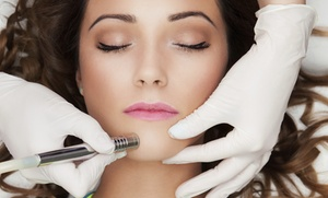 You're So Vain Salon, Spa, Boutique: $47 for  SilkPeel Microdermabrasion Treatment Package at You're So Vain Salon, Spa, Boutique ($110 Value)