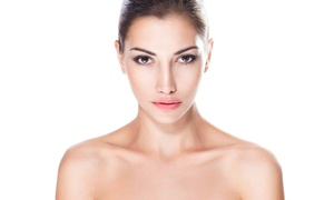 Elegance Beauty Clinic: Microdermabrasion: Three (£39) or Six (£65) Sessions at Elegance Clinic (81% off)