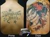 Correzione tatuaggio