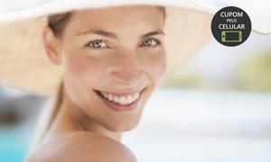 Instituto Esthetiqué: Esthetiqué Centro de Beleza – Alto da Glória:1, 2 ou 3 sessões de laser CO2 fracionado no rosto ou pescoço