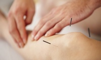 Acupuncture with Optional Back and Shoulder Massage from Memo Arteaga at Faith Elder Beauty Academy (Up to 56% Off)