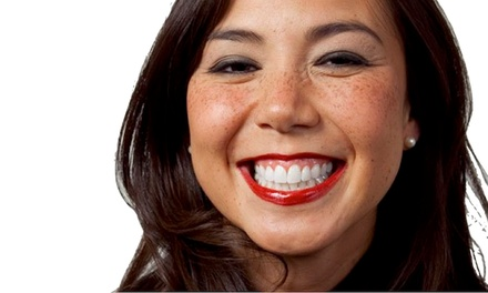 One 30- or 60-Minute UberWhite In-Office Laser Teeth Whitening at Smiles Dental Services (Up to 83% Off)