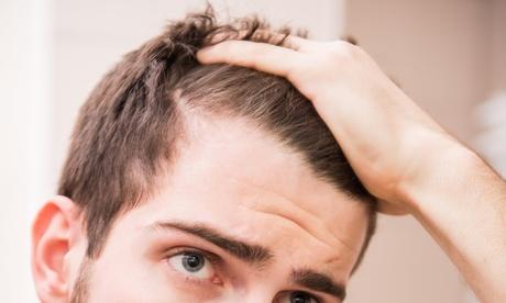 1x, 3x oder 5x Laser-Behandlung gegen Haarausfall inkl. Beratung im Savehair-Institut Stuttgart