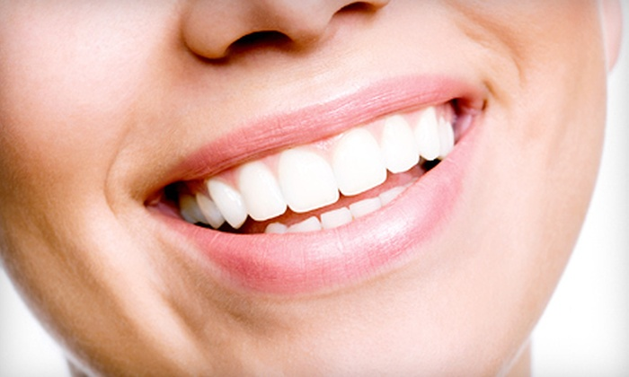 Nassau Street Dental Associates, 23rd Street Dental, 34th Street Dental, and 42nd Street Dental - Multiple Locations: $129 for a Sapphire Teeth-Whitening Treatment ($650 Value)