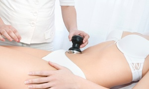 Health and Wellness Center: One, Three, Six, or Eight Ultrasound Cavitation Treatments at Health and Wellness Center (Up to 75% Off)