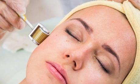 Limpieza facial con microdermoabrasión de punta de diamante o con tratamiento microagujas por 14,95 € en La Rosa