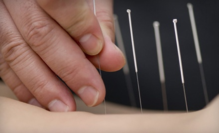 Holistic Health Assessment and 2 Acupuncture Treatments for 1 Person - Limestone Community Acupuncture in Kingston