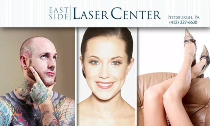 East Side Laser Center - Shadyside: $185 for $600 Toward Laser Hair or Tattoo Removal at East Side Laser Center