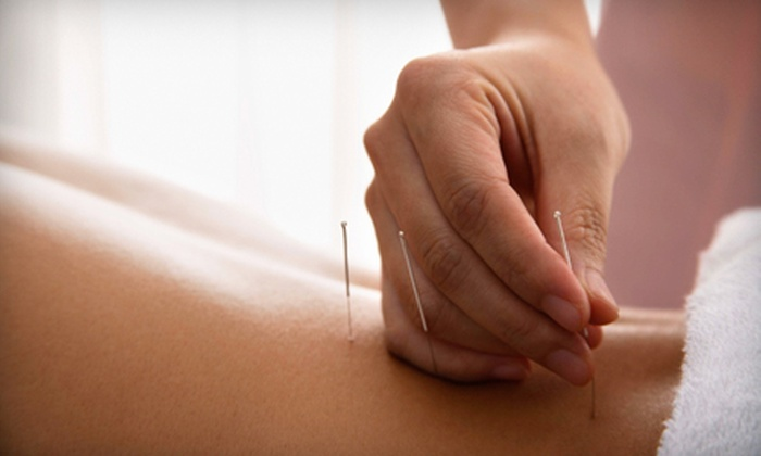 The Qi Spot - Downtown Portland: $29 for an Acupuncture Treatment and Reflexology Foot Massage at The Qi Spot (Up to $90 Value)