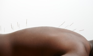 Whole Life Health and Wellness - Sherwood Swartz: Acupuncture at Whole Life Health and Wellness - Sherwood Swartz (Up to 82% Off). Two Options Available.