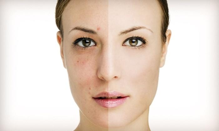 Natural Beauty Med Spa - Near North Side: $499 for a Full-Face Laser Skin Resurfacing at Natural Beauty Med Spa ($1,000 Value)